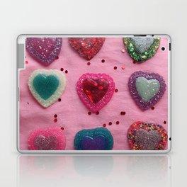 Glitter Hearts Club Laptop & iPad Skin