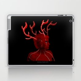 Photosynthesis Laptop & iPad Skin