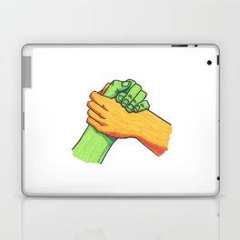 Hey Brother Laptop & iPad Skin