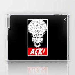 ACK! Laptop & iPad Skin