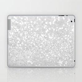 Chic elegant glamour White Faux Glitter  Laptop & iPad Skin