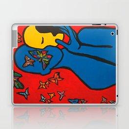 SKIN DEEP  (ORIGINAL SOLD)  #Society6  #decor  #buyart Laptop & iPad Skin