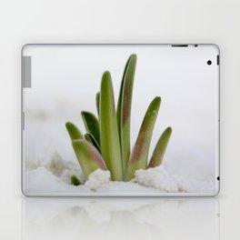 Peeking Through Laptop & iPad Skin