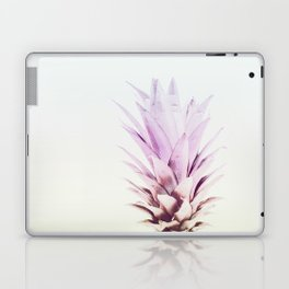 PASTEL PINEAPPLE no2 Laptop & iPad Skin