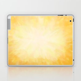 Golden Sunburst Laptop & iPad Skin