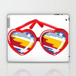 California Girl Sunglasses Laptop & iPad Skin