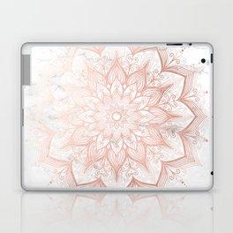 Imagination Rose Gold Laptop & iPad Skin