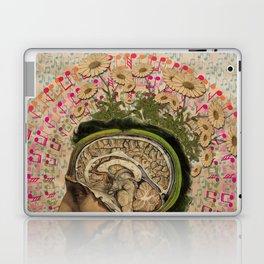 Sonic Irrigation Laptop & iPad Skin