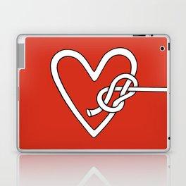 love me knot Laptop & iPad Skin