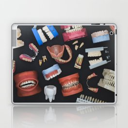 Tooth Collage Laptop & iPad Skin