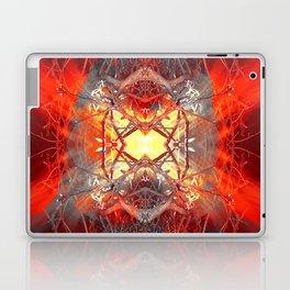 Spontaneous human combustion Laptop & iPad Skin