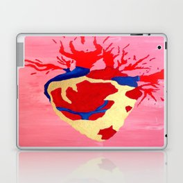 Cool Golden Heart Original Painting On Canvas Laptop & iPad Skin