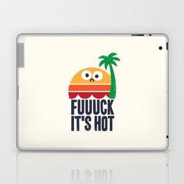 Heated Rhetoric Laptop & iPad Skin