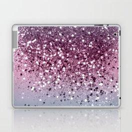 Unicorn Girls Glitter #6 #shiny #pastel #decor #art #society6 Laptop & iPad Skin