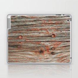 672 Grain Sheds 2 Laptop & iPad Skin