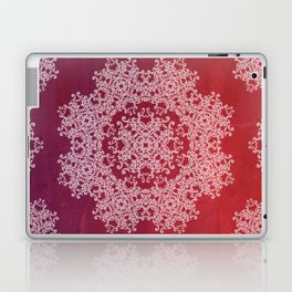 Playing with a lace - dresser from Grandma Laptop & iPad Skin
