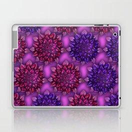 Focus 1 Laptop & iPad Skin
