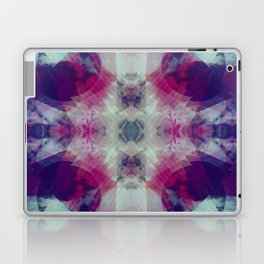 Betrachtung Laptop & iPad Skin