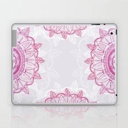 Love is a Lottery Laptop & iPad Skin