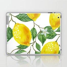 TROPICAL LEMON TREE Laptop & iPad Skin