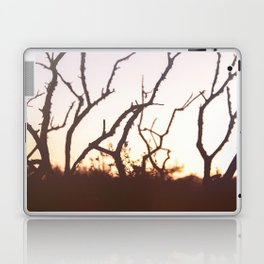 burning Laptop & iPad Skin