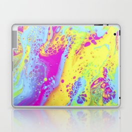 Color POP Laptop & iPad Skin