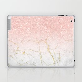 Rose Gold Glitter and gold white Marble Laptop & iPad Skin