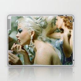 Las Vegas Showgirls 1960 Laptop & iPad Skin