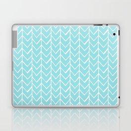Herringbone Island Paradise Laptop & iPad Skin