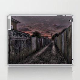 eggHDR1418 Laptop & iPad Skin