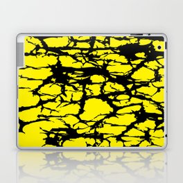 Yellow and Black Interlace Laptop & iPad Skin