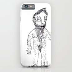 Hairy Jewish Man Who Was Born With Alligator Feet iPhone 6s Slim Case