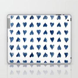 Hearts Watercolor Pattern Laptop & iPad Skin