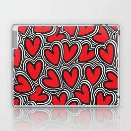 Love, love, love Laptop & iPad Skin