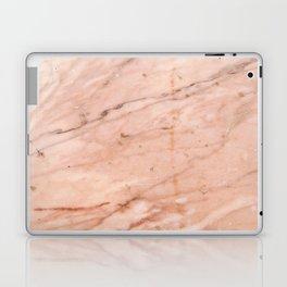 Rose-Gold Marble Laptop & iPad Skin