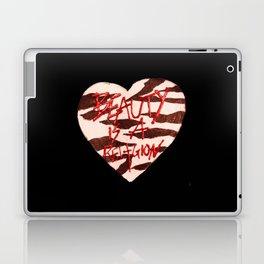 BeautyIsAReligion `ZEBRA HEART` Laptop & iPad Skin
