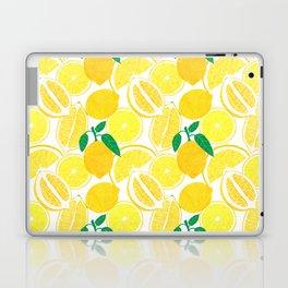 Lemon Harvest Laptop & iPad Skin