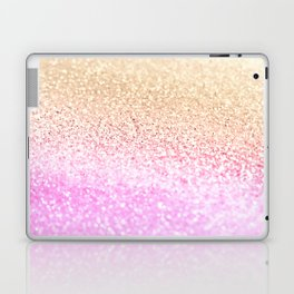 GOLD PINK GLITTER by Monika Strigel Laptop & iPad Skin