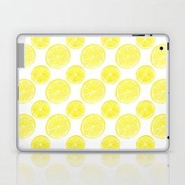 Hello Sunshine Lemons Laptop & iPad Skin