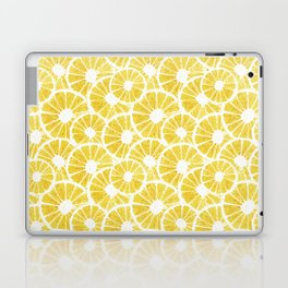 WATERCOLOR LEMONS Laptop & iPad Skin