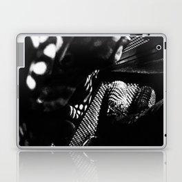 Accidental Photography Laptop & iPad Skin