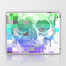 Dead Pixel Laptop & iPad Skin
