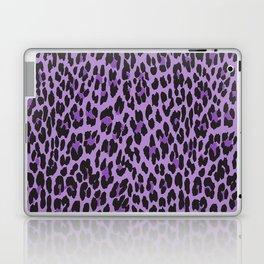 Animal Print, Spotted Leopard - Purple Black Laptop & iPad Skin