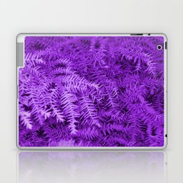 #21 Laptop & iPad Skin