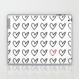 HEARTS ALL OVER PATTERN IV Laptop & iPad Skin