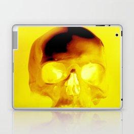 Yellow Skull Laptop & iPad Skin