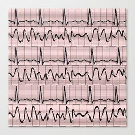 Cardiac Rhythm Strips EKG Canvas Print