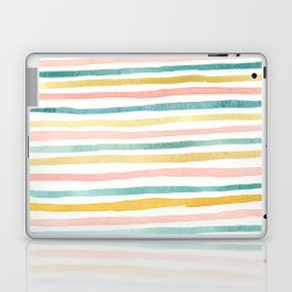 Pink, Teal, and Gold Stripes Laptop & iPad Skin