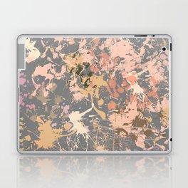 Skin Tones - Liquid Makeup Foundation - on Gray Laptop & iPad Skin