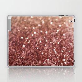 Cafe Au Lait Glitter #1 #shiny #decor #art #society6 Laptop & iPad Skin